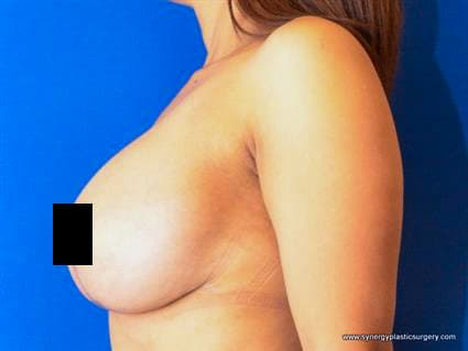 After Breast Lift and Breast Augmentation
