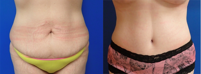 Tummy tuck and liposuction before and after in Austin