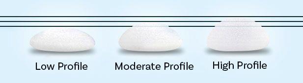Implant Profile Options