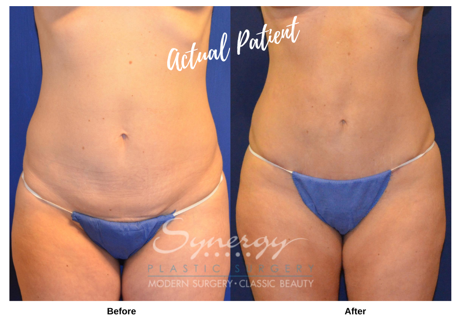 Before and after images of an actual Synergy Plastic Surgery Patient.